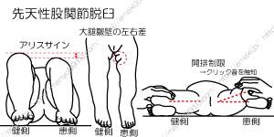 先天 性 股関節 脱臼